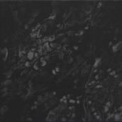 """Reflet N°2"" - 20 cm x 20 cm - 2017"